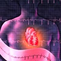 Arritmias ventriculares da medicação ao CDI